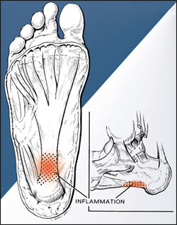 Ultrasound-guided puncturing of the heel periosteum and the insertion of the plantar fascia, supplemented with a steroid injection, can eliminate plantar fasciitis